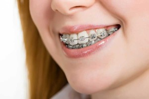 Orthodontist Escondido